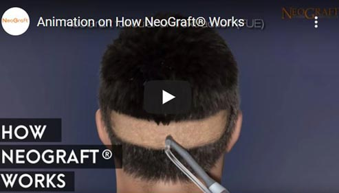 Video on The NeoGraft Procedure Click to See