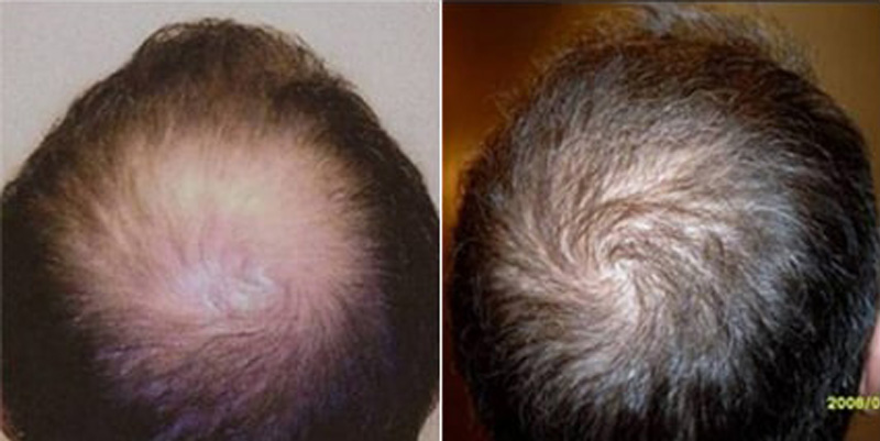 Before and after photos of a patient top side view who undergone hair transplant