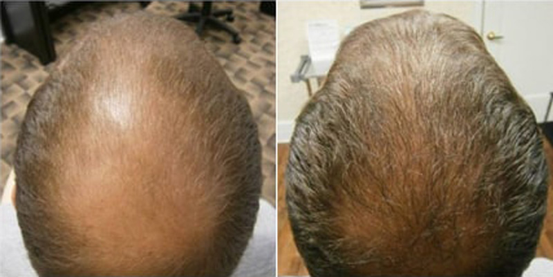 Before and after photos of a patient top view who undergone hair transplant