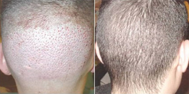 Before and after photos of a patient back side view who undergone hair transplant