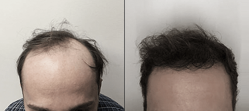 Before and after photos of a patient front view who undergone hair transplant
