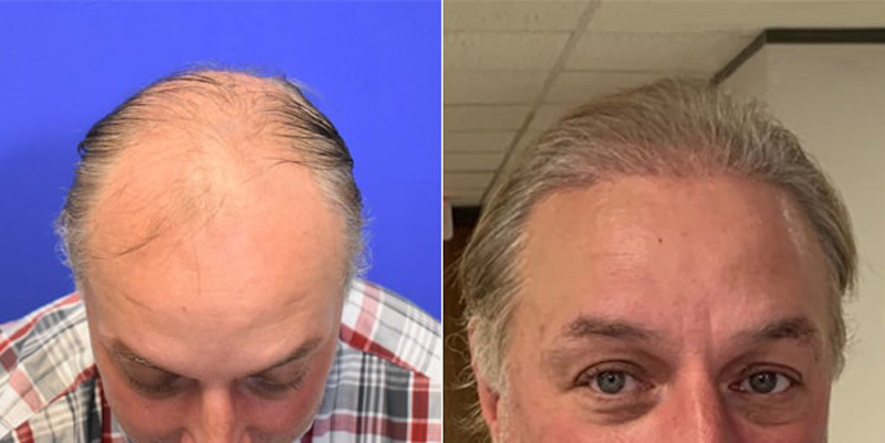 Before and after photos of a patient top and front side view who undergone hair transplant