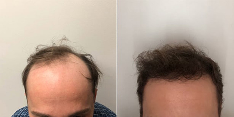 Before and after photos of a patient front side view who undergone hair transplant