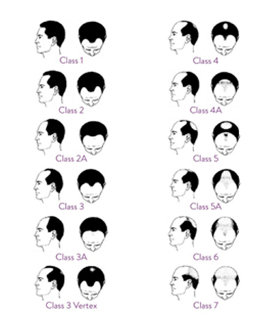 Norwood Hair Loss Scale